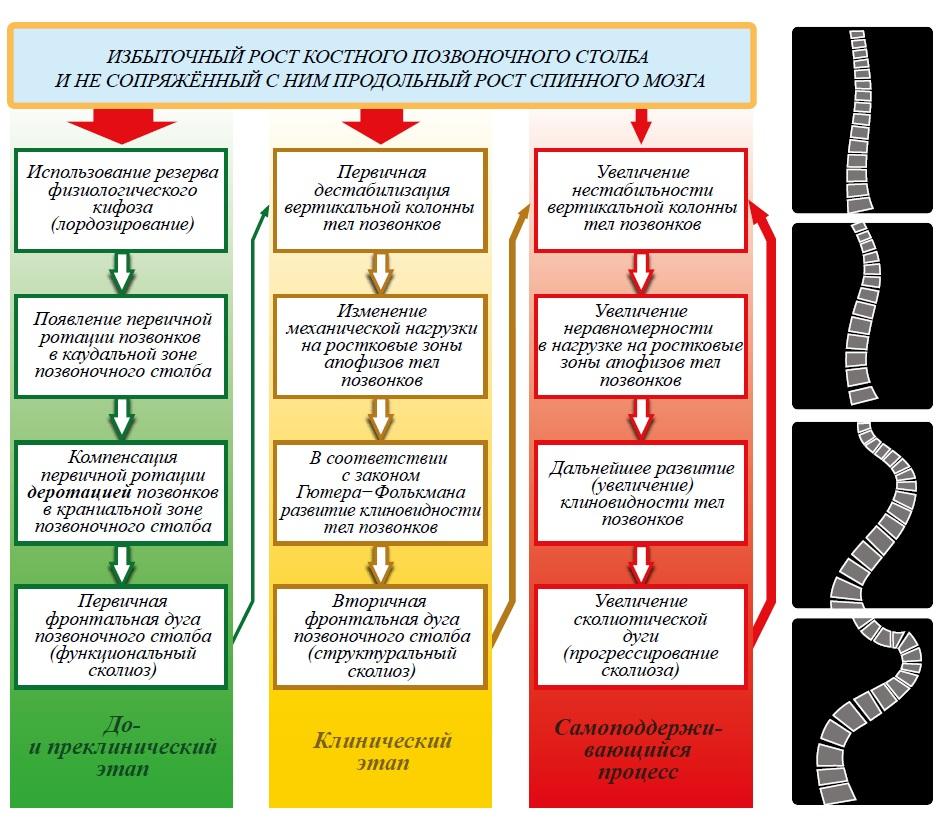 Схема патогенеза типичного