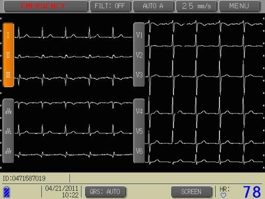 Вывод кардиологических параметров на экран кардиографа Cardisuny C-320