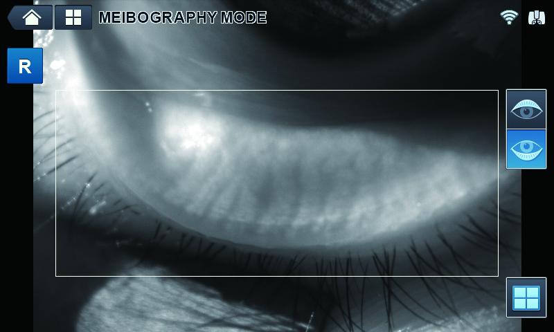 Мейбомиография Huvitz HRK-9000А