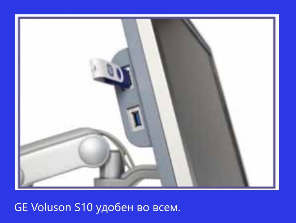 Voluson S10-2.jpg
