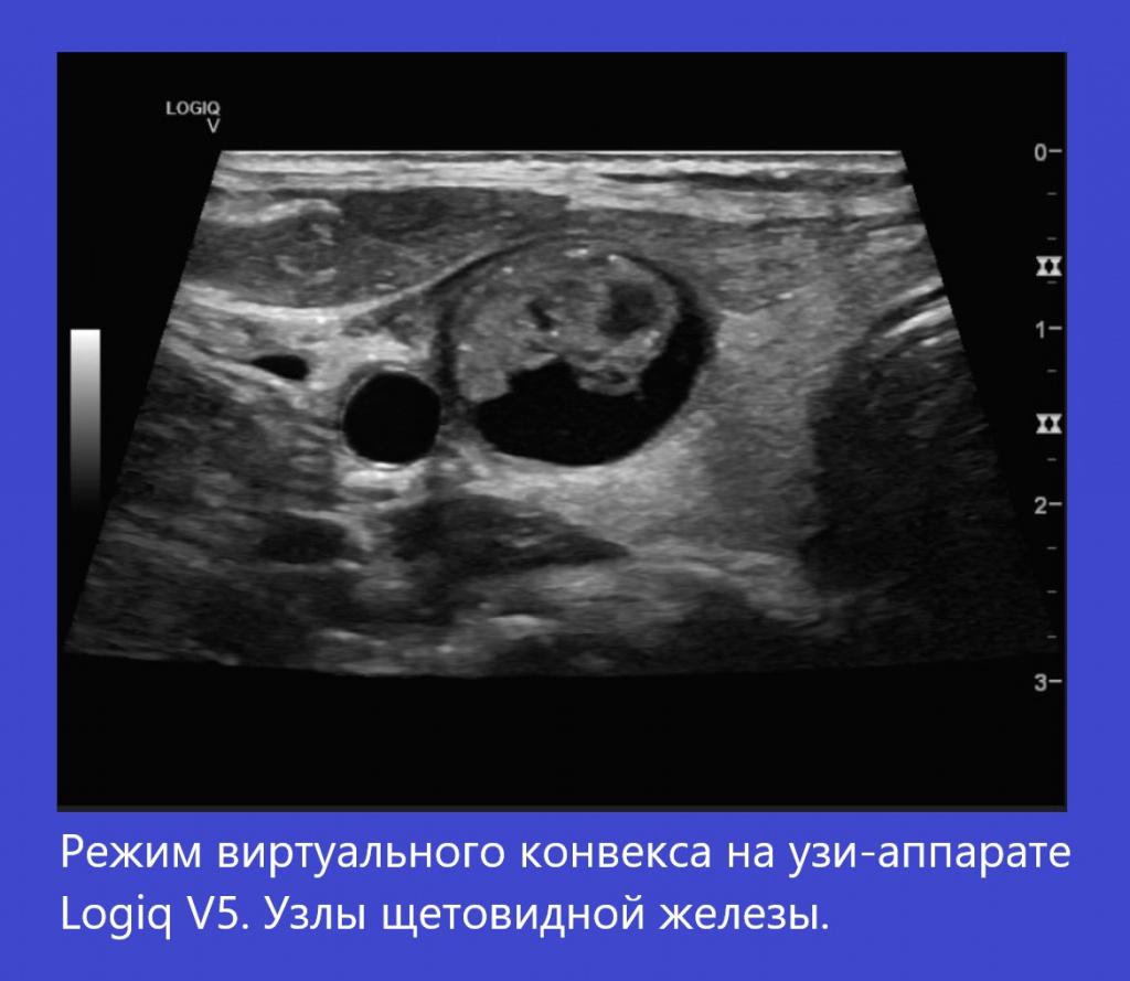 logiq_v5_virtual_convex.jpg