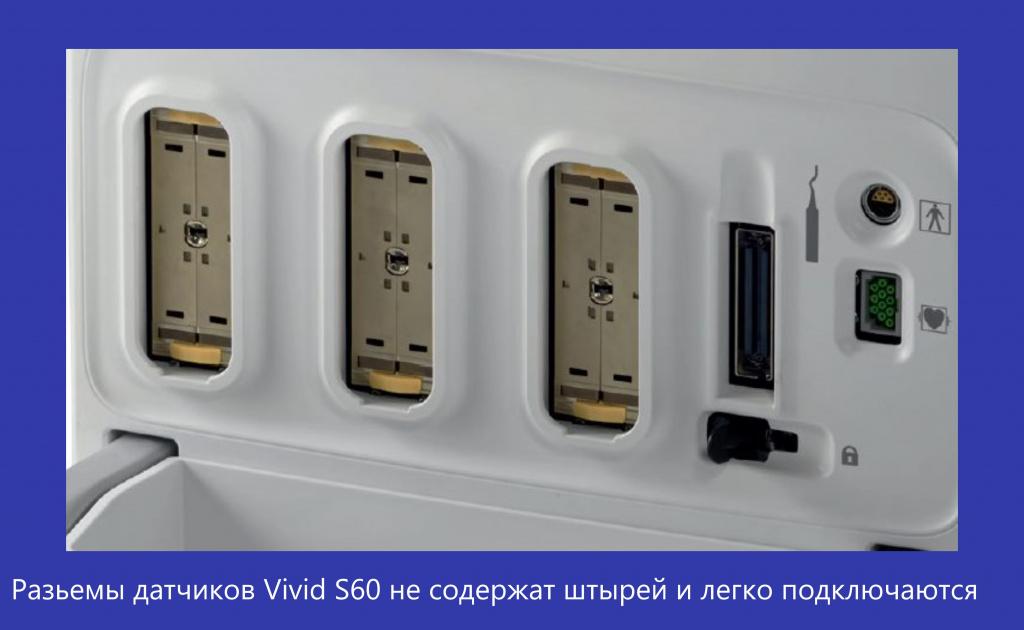 Vivid S60-1.jpg